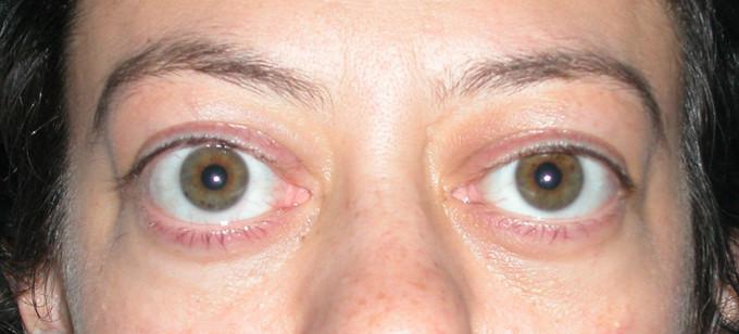 ¿Sabes lo que es la Oftalmopatía Distiroidea?