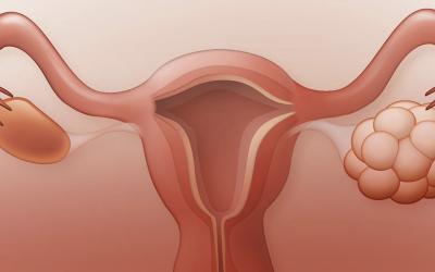 Síndrome de Ovario Poliquístico: Primera causa de consulta por Infertilidad