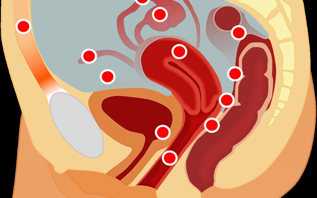 Tratamiento médico de la Endometriosis
