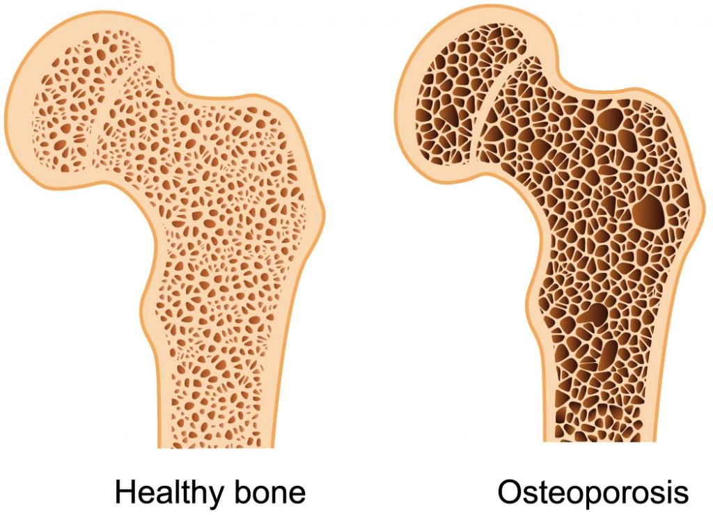 ¿Qué tanto conoces sobre la Densitometría Ósea y la Osteoporosis?