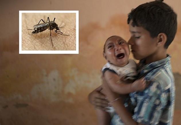 Microcefalia y Zika