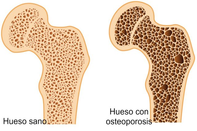 osteop1